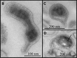 Transmission electron micrograph (TEM) images like these show that most have protrusions (B), dark areas that probably are packed ribosomes (C) and unidentified dark inclusions (D).