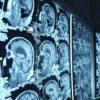 brain_scans